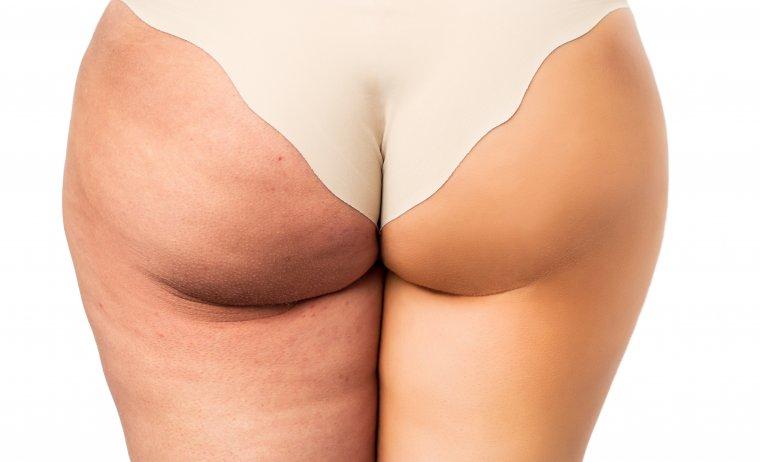 Cellulite prima dopo MES