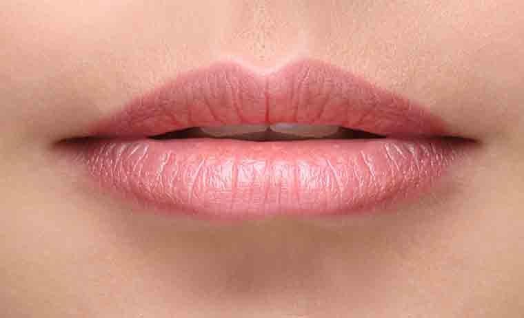 Filler labbra MES
