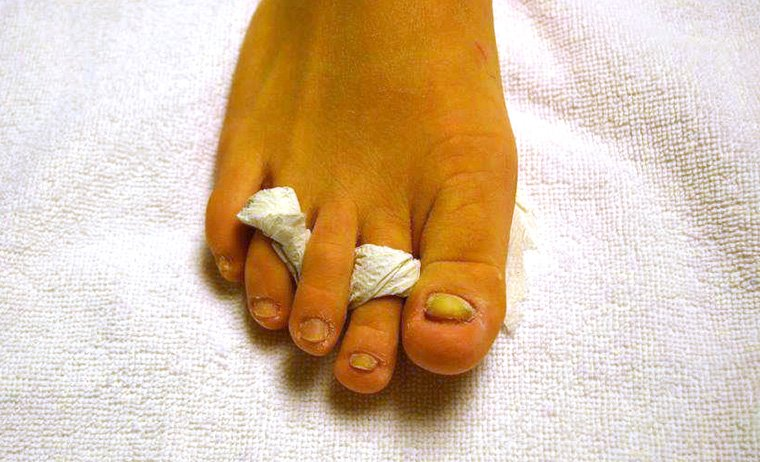 Unghie rotte ricostruzione unghie