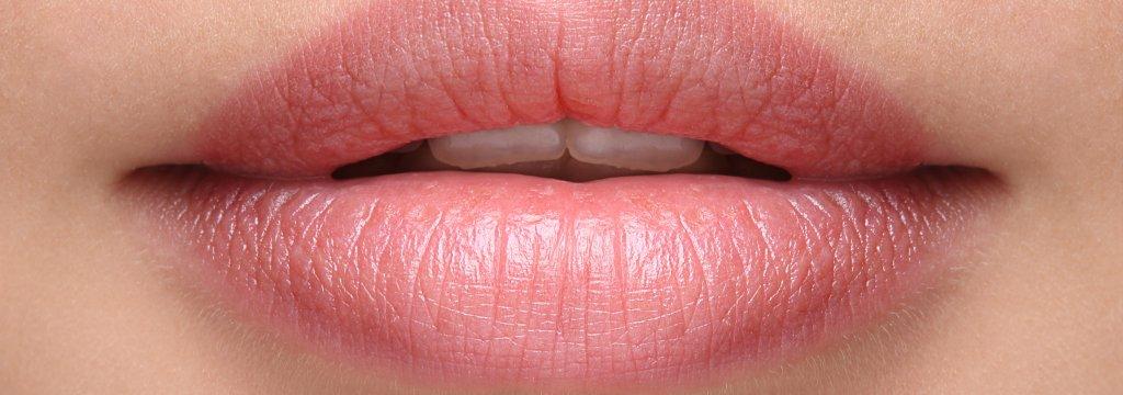 Filler Lippen MES