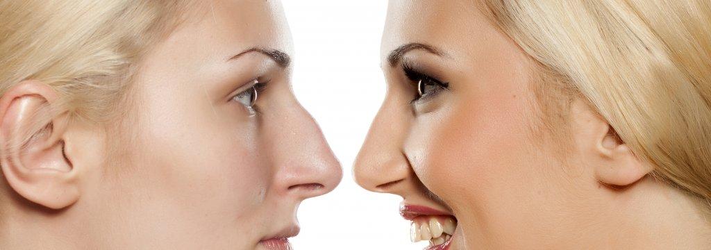 Nicht chirurgische Nasenkorrektur