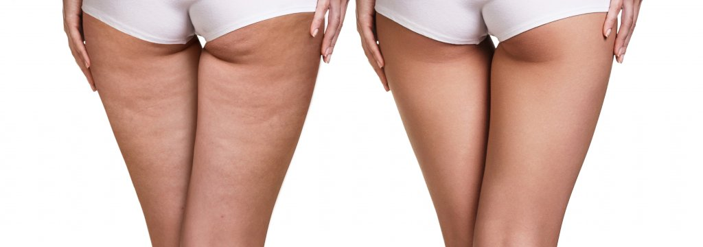 MES Velashape vela shape trattamento cellulite